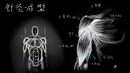 Electrionic acupuncture